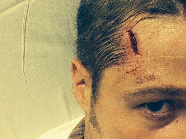 Ben McKenzie vuelve al trabajo tras el accidente que sufrió en Gotham