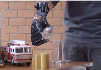 Un paciente chileno recibe una prótesis de mano impresa en 3D