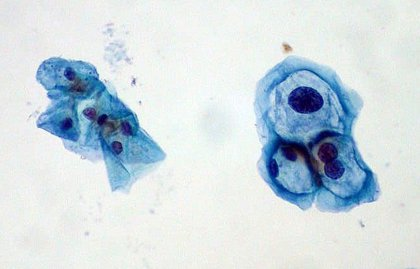 La OMS  recomienda vacunarse del VPH contra el cáncer de cuello de útero