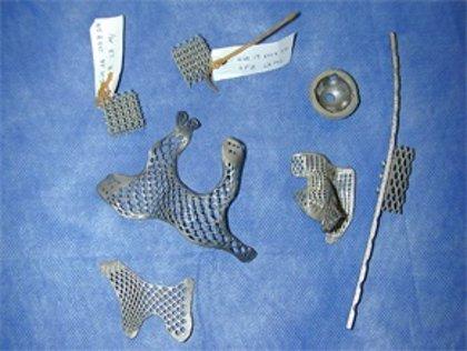 Desarrollan nuevas estructuras de titanio con poros para integrar las prótesis óseas