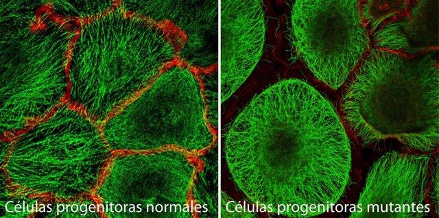 Células madre de la piel