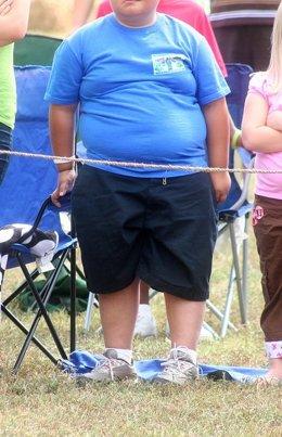 Niño obeso, obesidad
