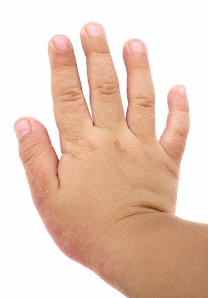 El frío seco agrava los síntomas de la dermatitis atópica infantil