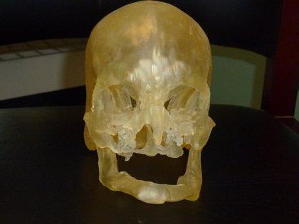 Impresión en 3-D para los trasplantes de cara humanos