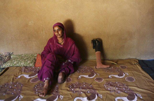 Mujer discapacitada afectada por la explosión de una mina en India.