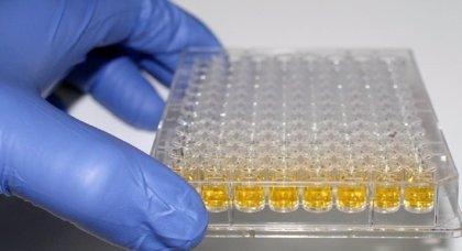 Un cultivo en 3-D para cáncer de páncreas puede cambiar su abordaje