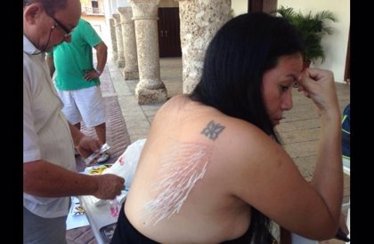 Activista protesta contra las corridas de toros clavándose agujas en el cuerpo
