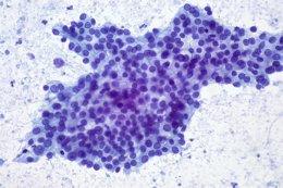 Biopsia de un tumor en el páncreas