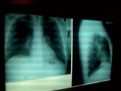 El riesgo de infarto o ictus aumenta tras ser hospitalizado por neumonía