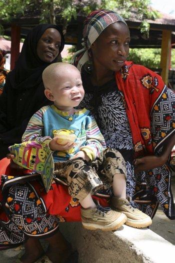 Una madre con su hijo albino en Dar es Salaam (Tan
