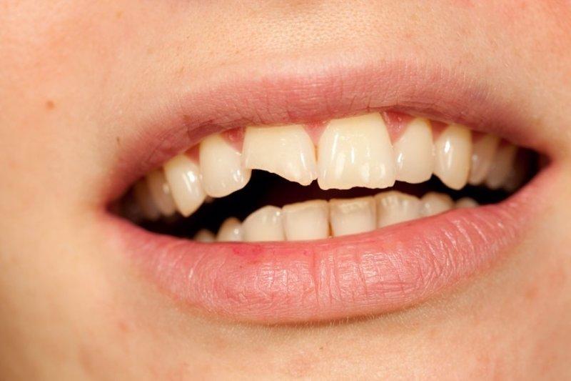 traumatismos en los dientes de leche