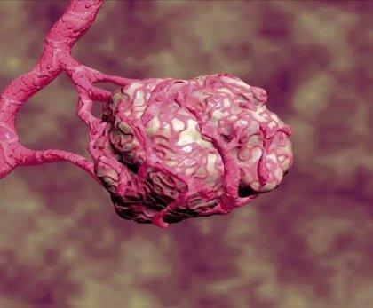 'Avastin' (Roche) recibe la opinión positiva del comité asesor de la EMA para cáncer de cérvix avanzado