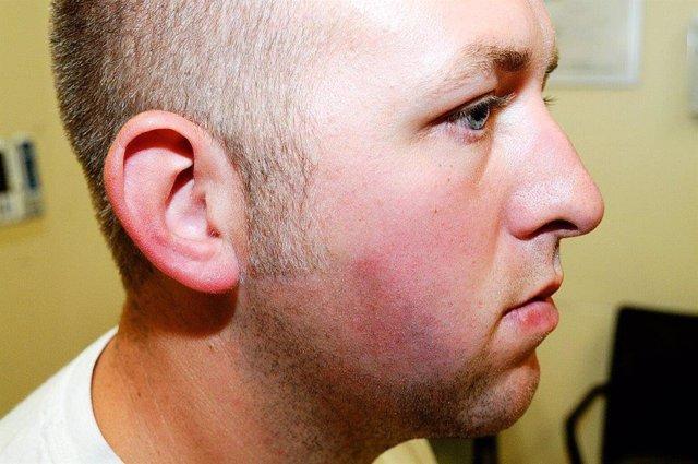 El agente Darren Wilson tras la agresión de Michael Brown