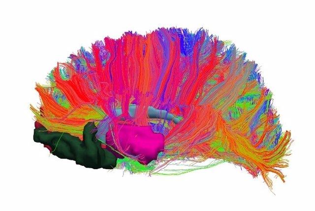 UB: Identifican Alteraciones En El Sistema De Recompensa Cerebral De Las Persona