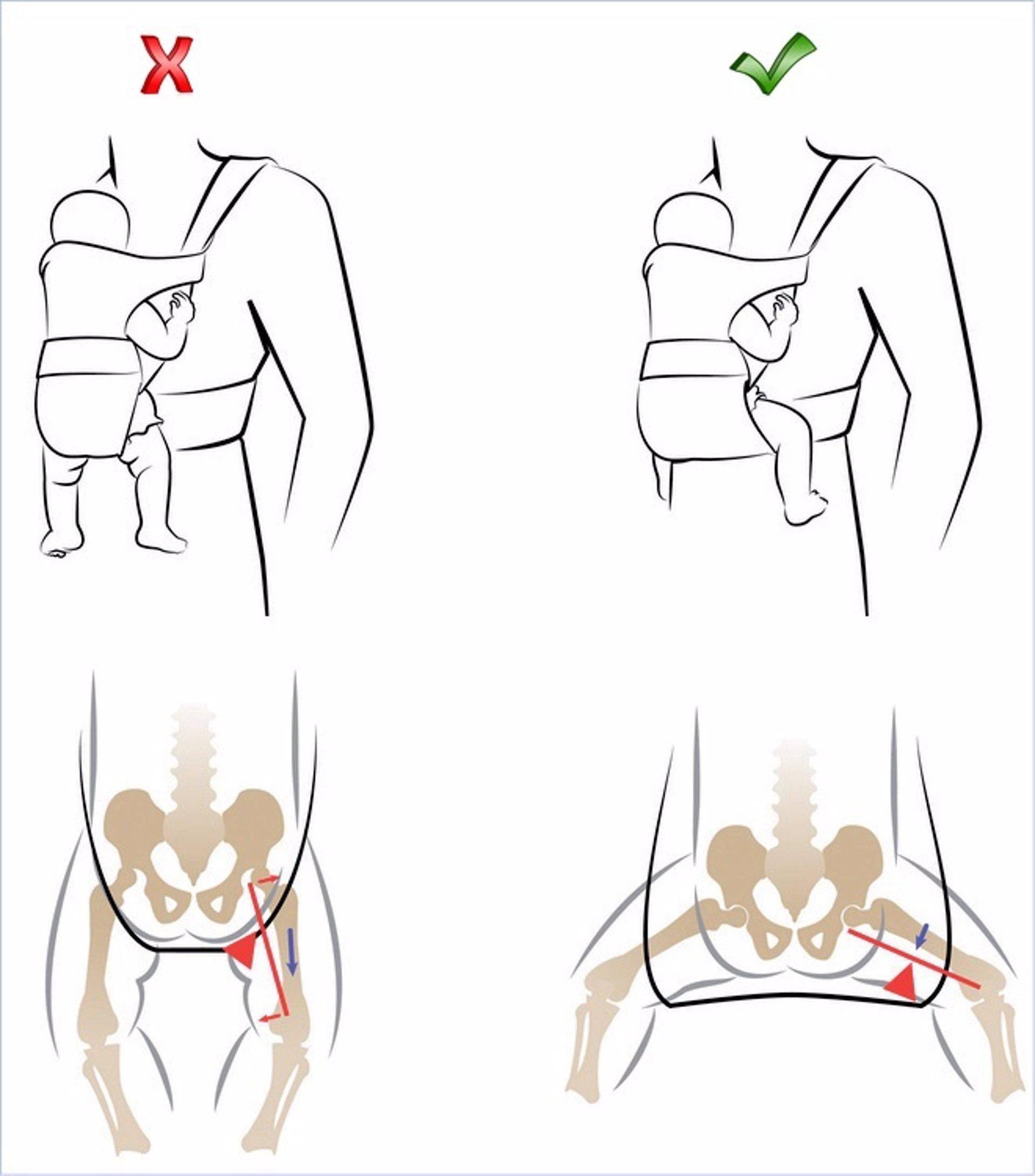 d9324d9483466 El porteo ergonómico, una opción segura para transportar a los recién  nacidos