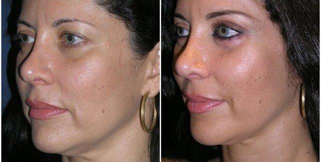 Antes y después del biolifting endoscópico