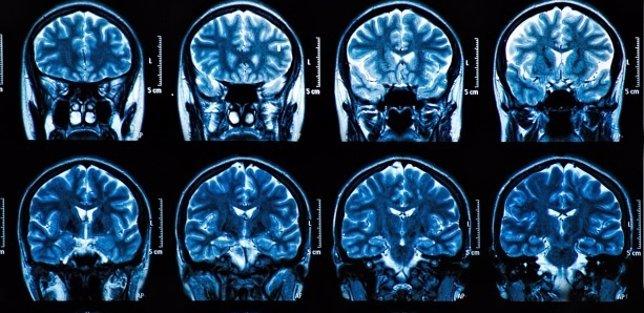 Escaner cerebro