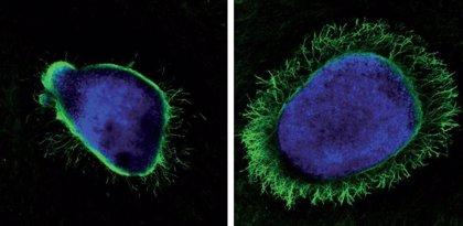 Investigan el uso del virus del herpes contra procesos neurodegenerativos