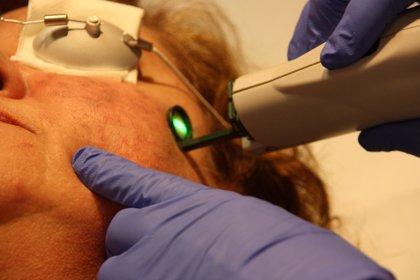 Riesgos del rejuvenecimiento facial con láser