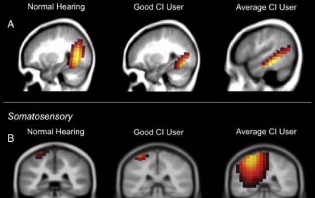 Reorganización cerebral tras la pérdida de audición