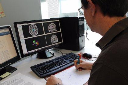 Crean un sistema 'on line' gratuito de análisis rápido y preciso de imágenes de resonancia magnética del cerebro