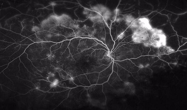 Nueva forma de prevenir la ceguera asociada con la diabetes