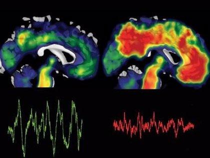 La falta de sueño, relacionada con el Alzheimer