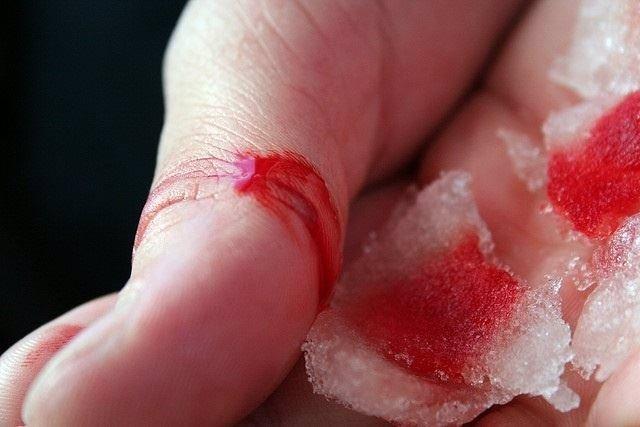 Afectado por hemofilia