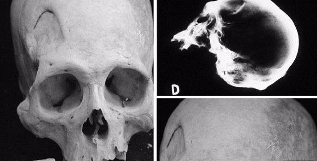 Cirugía cerebral primitiva