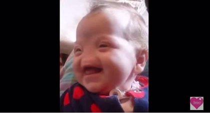 Tessa Evans, la niña que tendrá nariz gracias a una impresora 3D