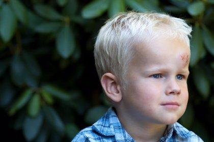 Chichones en los niños: dudas frecuentes
