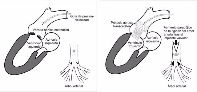 Infografía válvula aórtica