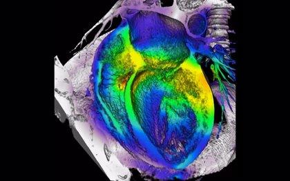 Mejoran la fuerza del latido de corazones infartados con bioimplantes de células madre