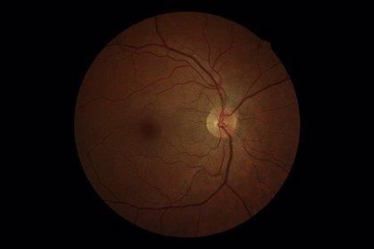 El 60% de los pacientes con glaucoma no cumple bien el tratamiento