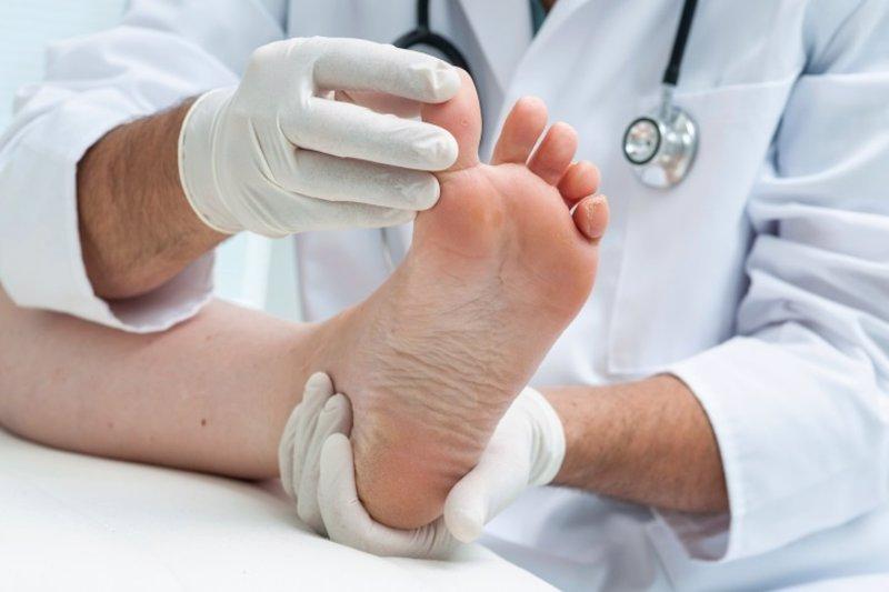 Dedos en martillo: frena la degeneración de tus pies