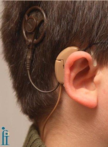 El Ministerio de Sanidad regula la prestación de los implantes bilaterales para sordos