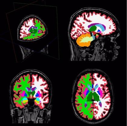 Descubren alteraciones en estructuras cerebrales en pacientes con esquizofrenia