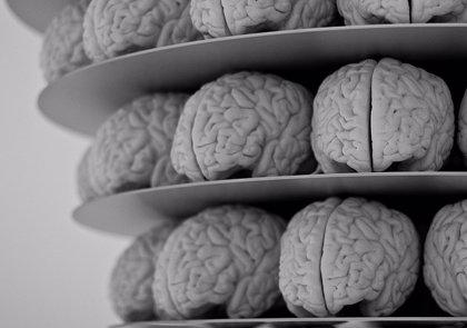El desarrollo del Alzheimer es diferente en síndrome de Down