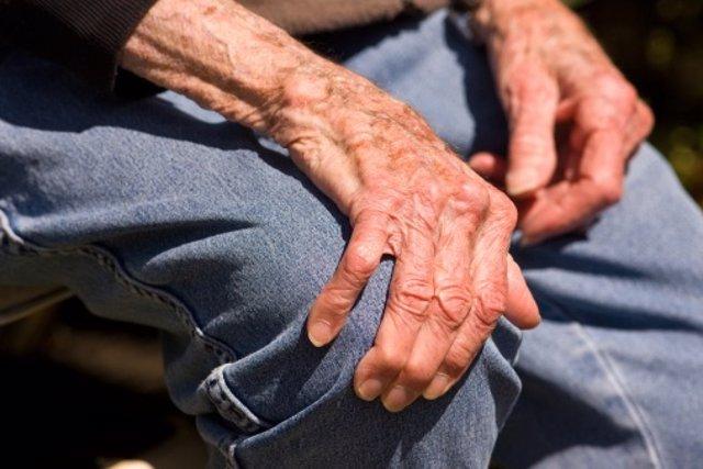 Artrosis, la enfermedad
