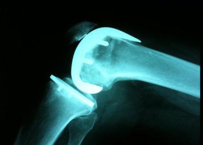 Investigadores vascos crean un recubrimiento más eficiente para prótesis de titanio