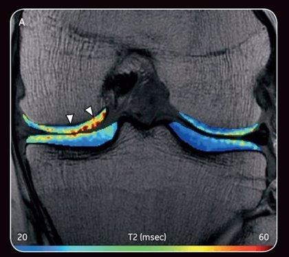 La NBA y GE Healthcare colaboran en la investigación médica ortopédica y del deporte
