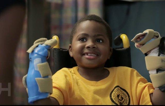 Zion tras la operación del trasplante de manos