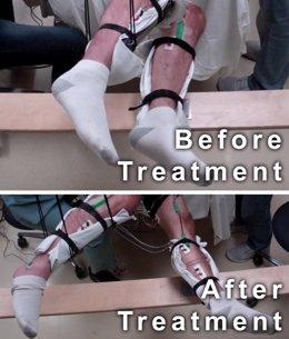 Lesionados medulares logran mover las piernas