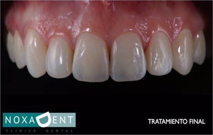 La clínica Noxadent incorpora Digital Smile Design para evaluar los tratamientos