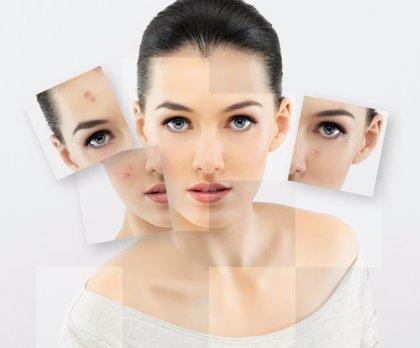 Las causas del acné adulto
