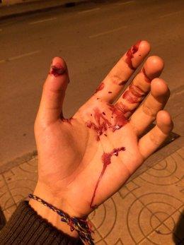 La mano de uno de los agredidos