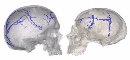 Un procedimiento para analizar el sistema vascular interno del cráneo