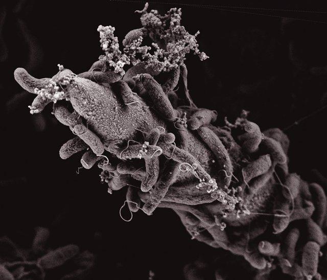 Bacteria del cólera vista microscópicamente.