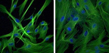 ¿Qué papel juega el envejecimiento celular en el cáncer?