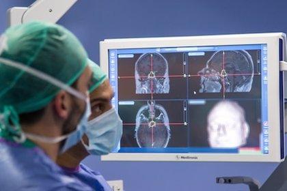 El abordaje endoscópico con neuronavegador reduce riesgos en el adenoma de hipófisis